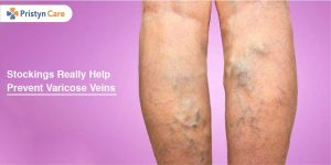 Stockings Really Help Prevent Varicose Veins