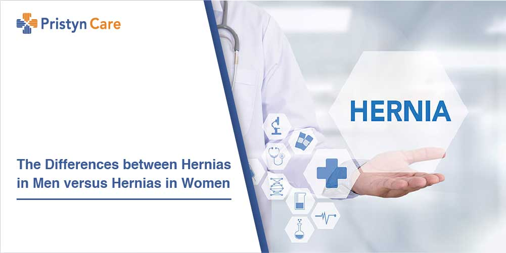 The Differences between Hernias in Men versus Hernias in Women