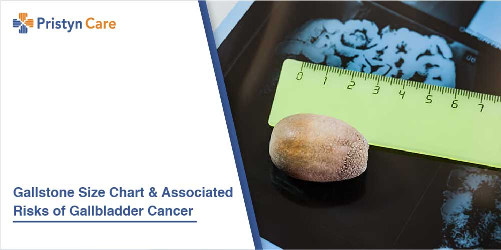 Gallstone Size Chart And Associated Risks of Gallbladder Cancer
