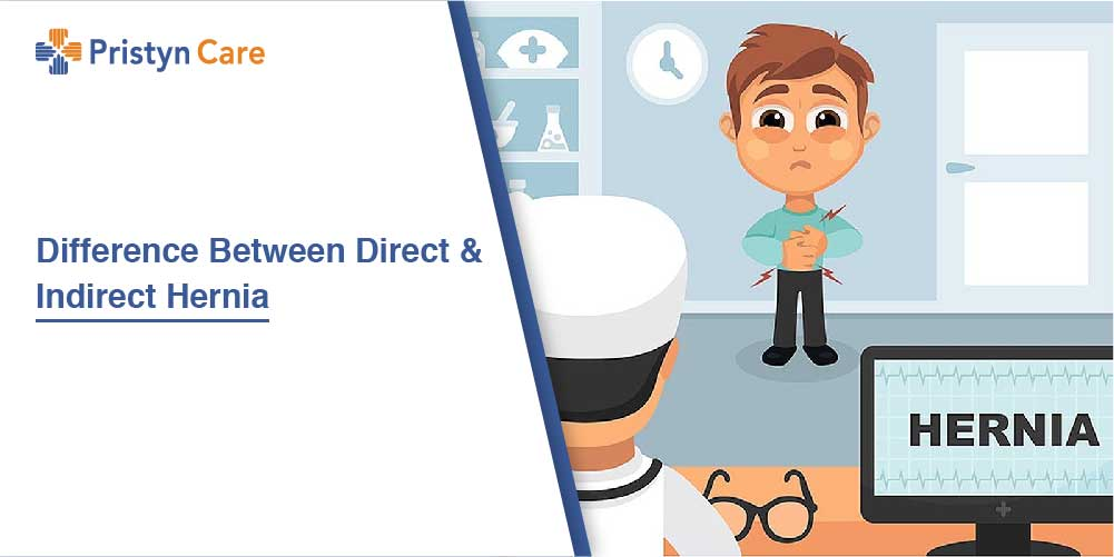 Difference Between Direct And Indirect Hernia