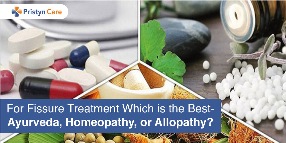 Fissure treatment - Allopathy, Homeopthy, Ayurveda