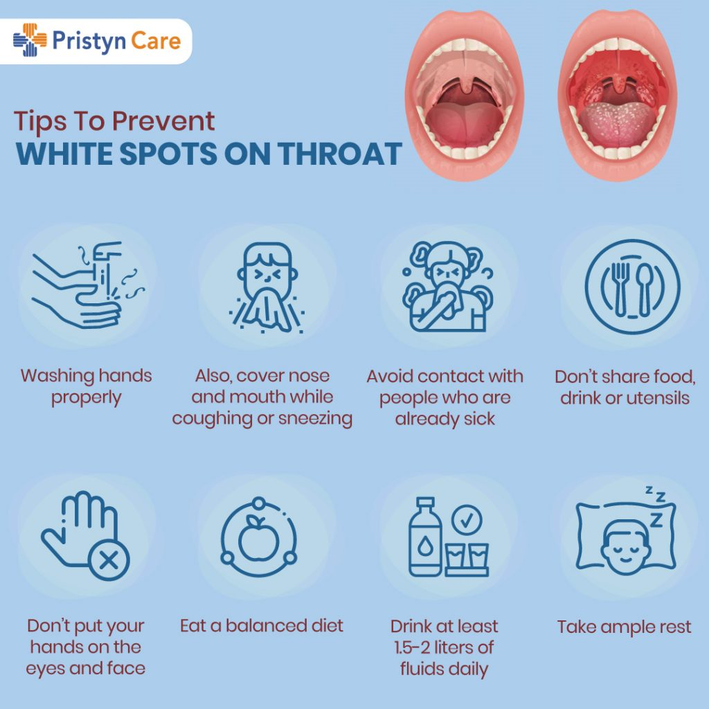 Tips-To-Prevent-White-Spots-On-Throat