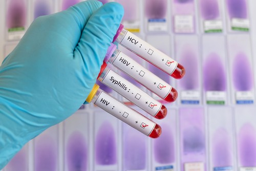 Blood sample positive with sexually transmitted diseases