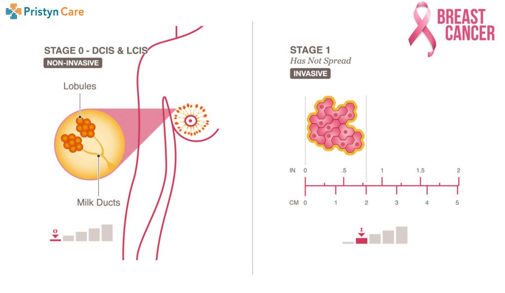 breast cancer stage 0 and 1