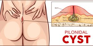 16 Effective Home Remedies For Pilonidal Cyst By PristynCare