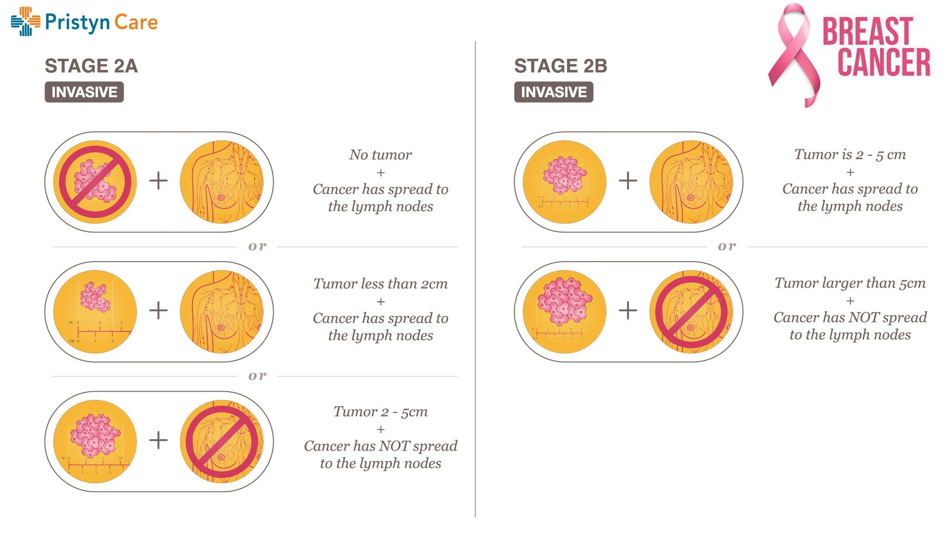 stage 2 of breast cancer
