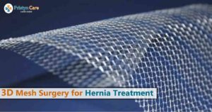 3d mesh surgery for hernia treatment
