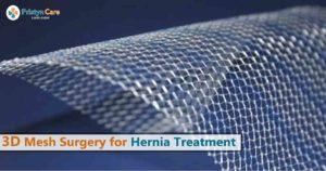 3d mesh surgery for hernia treatment