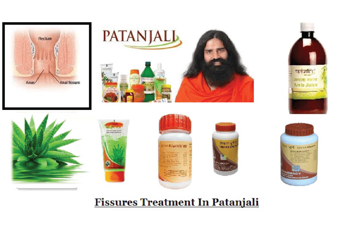 Anal Fissure Treatment options in Patanjali