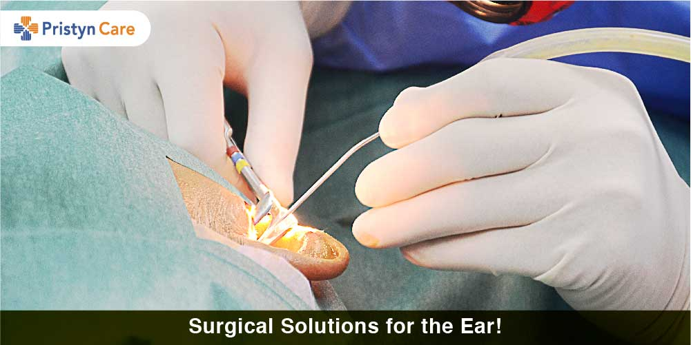 Surgical Solutions for the Ear!
