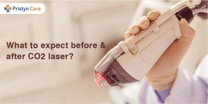 What to expect before and after CO2 laser