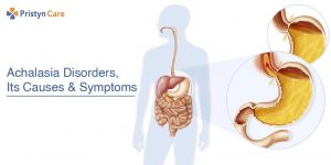 achalasia disorders