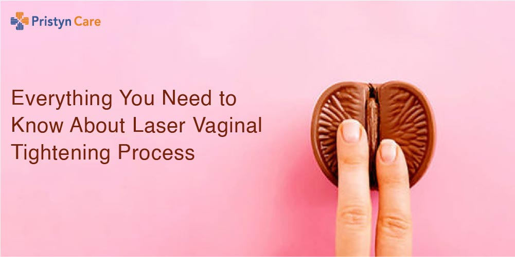 Everything You Need to Know About Laser Vaginal Tightening Process