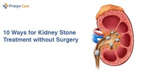 10 Ways for Kidney Stone Treatment without Surgery
