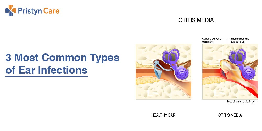 3 Most Common Types of Ear Infections (Otitis Media)