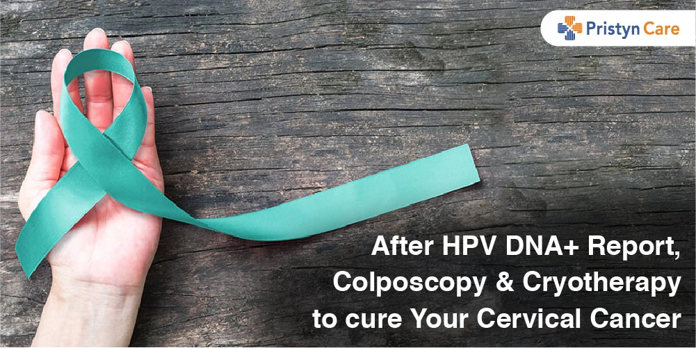After HPV DNA+ Report, Colposcopy and Cryotherapy to cure Your Cervical Cancer
