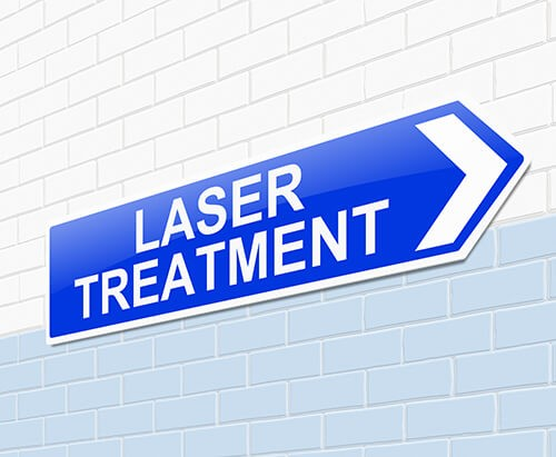 But How does LASER Work- cover