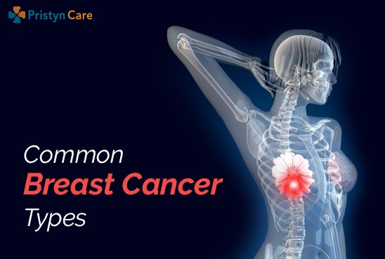 common types of breast cancer