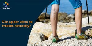 Can spider veins be treated naturally?