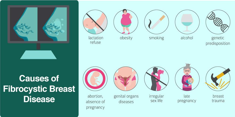 Causes of Fibrocystic Breast Disease