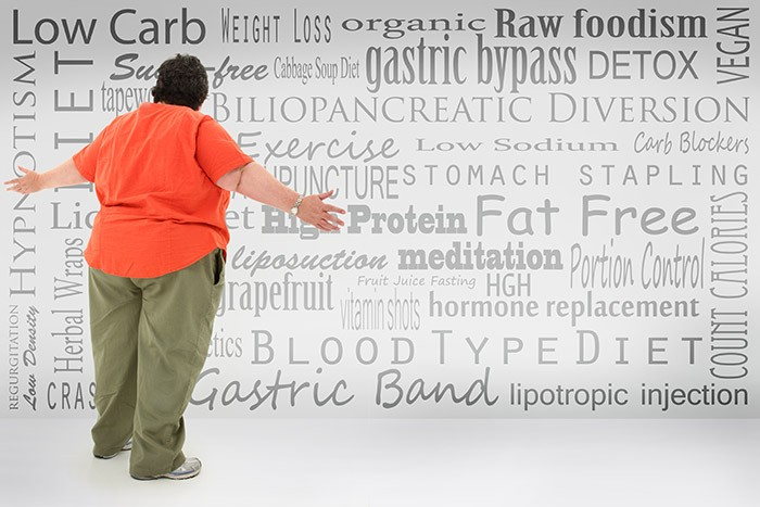 Gastric bypass surgery before and after