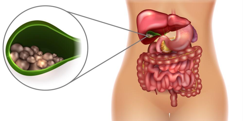 Gallbladder stone