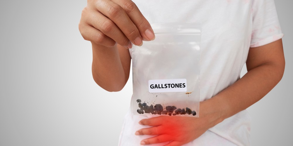 How Prevalent Gallstones Are In India