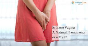 Is Loose Vagina A Natural Phenomenon or a Myth