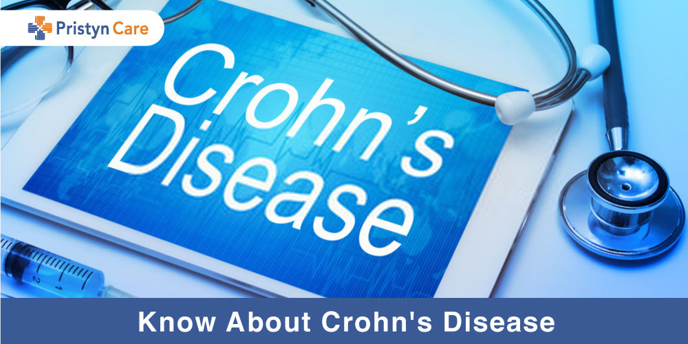 Know about crohn's disease
