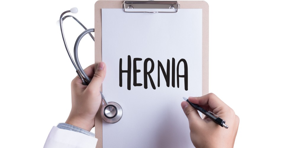 Precautions to be taken after Hernia Surgery