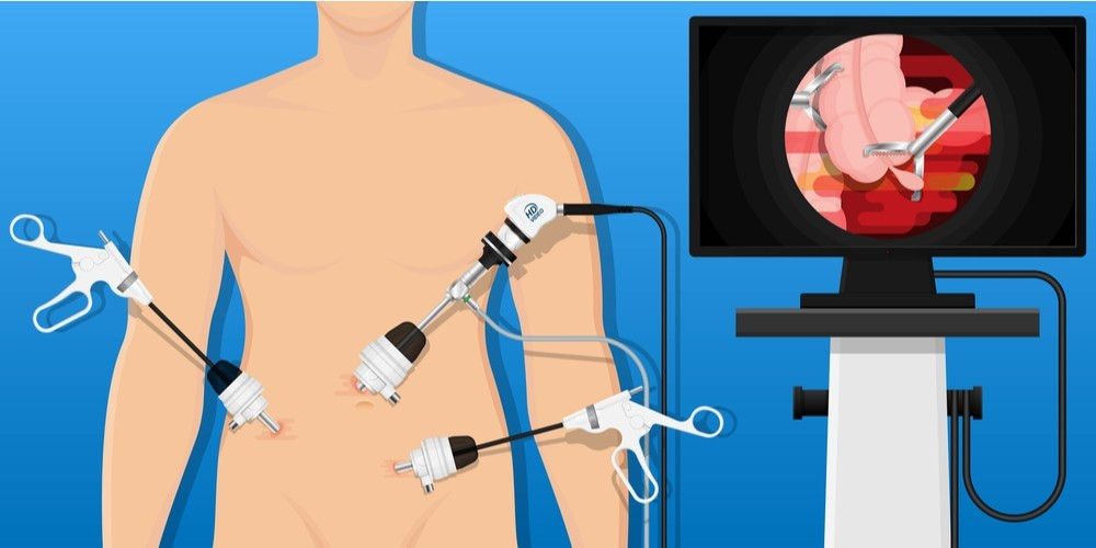 Qualities of a Laparoscopic Surgeon a patient can look for