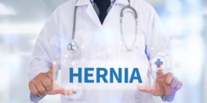 Role of Laparoscopy to Treat Hernia Effectively