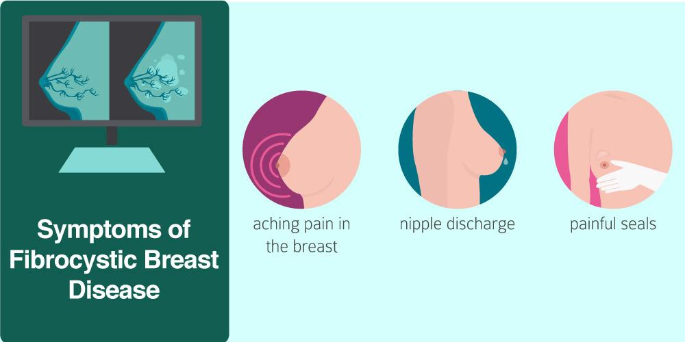 Symptoms of Fibrocystic Breast Disease
