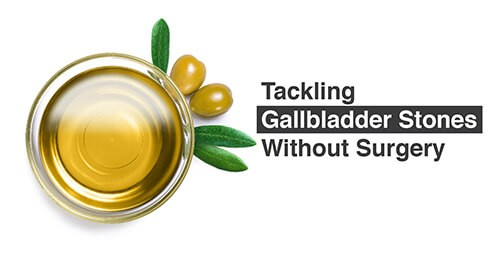 Tackling Gallbladder Stones Without (1)