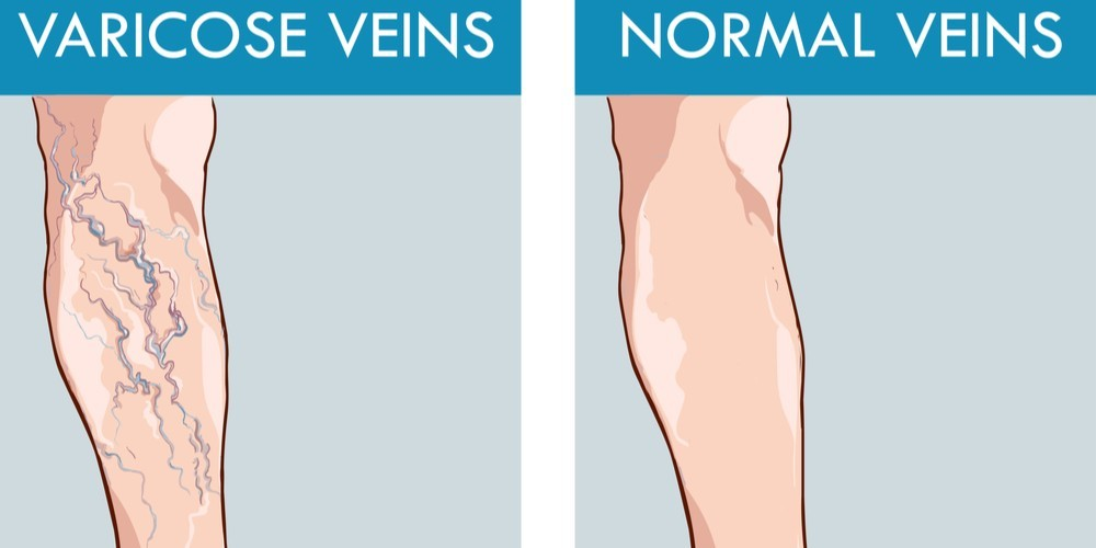 Top 10 ways to prevent varicose veins