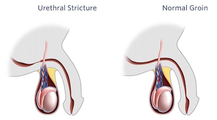 Urethral-Stricture in males