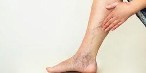 Varicose Veins Proven Treatments