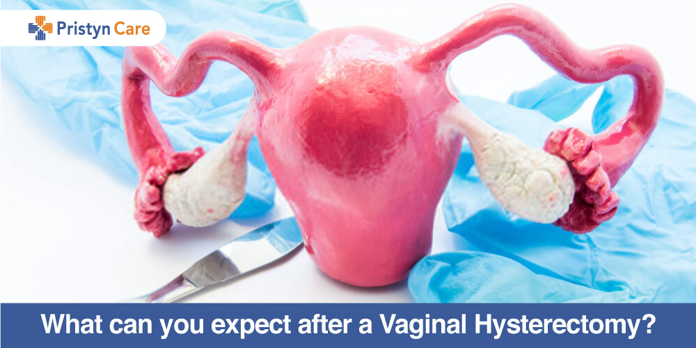 What can you expect after a Vaginal Hysterectomy?