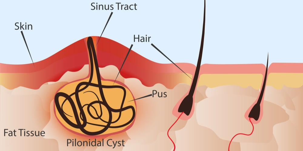 Who is likely to get the Pilonidal Sinus or Cyst