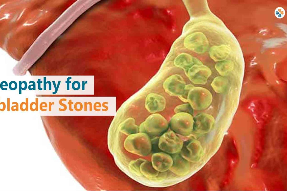 Homeopathy for Gallbladder Stones