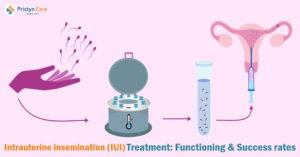 Intrauterine insemination (IUI) Treatment: Functioning & Success rates