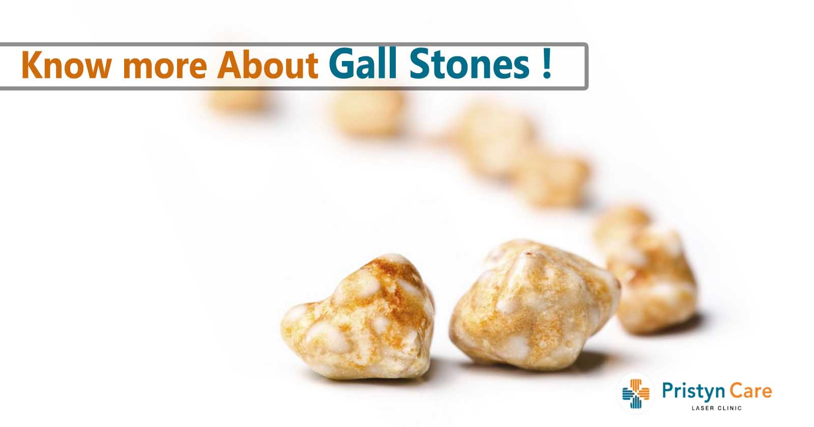 know-more-about-gall-stones