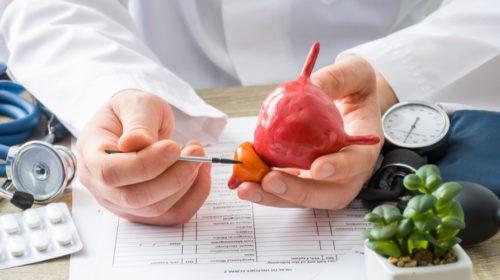 Risk Factors and Prevention for Prostate Enlargement