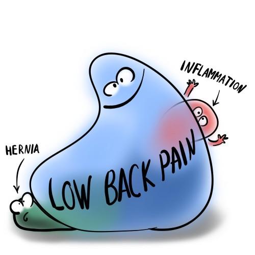 symptoms of hernia