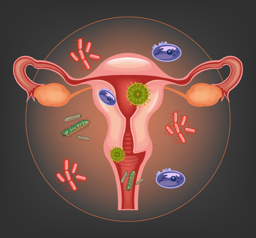 infections in vaginal area