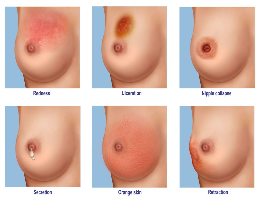 Warning signs and symptoms of breast cancer