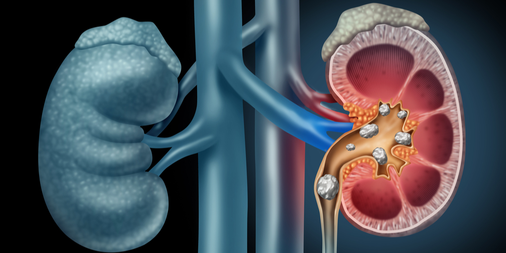 Know About The Types of Kidney Stones