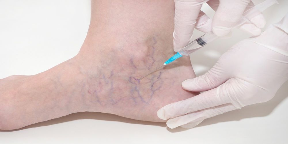 spider veins in feet-sclerotherapy for spider veins