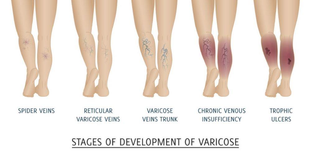 spider veins in legs-varicose veins