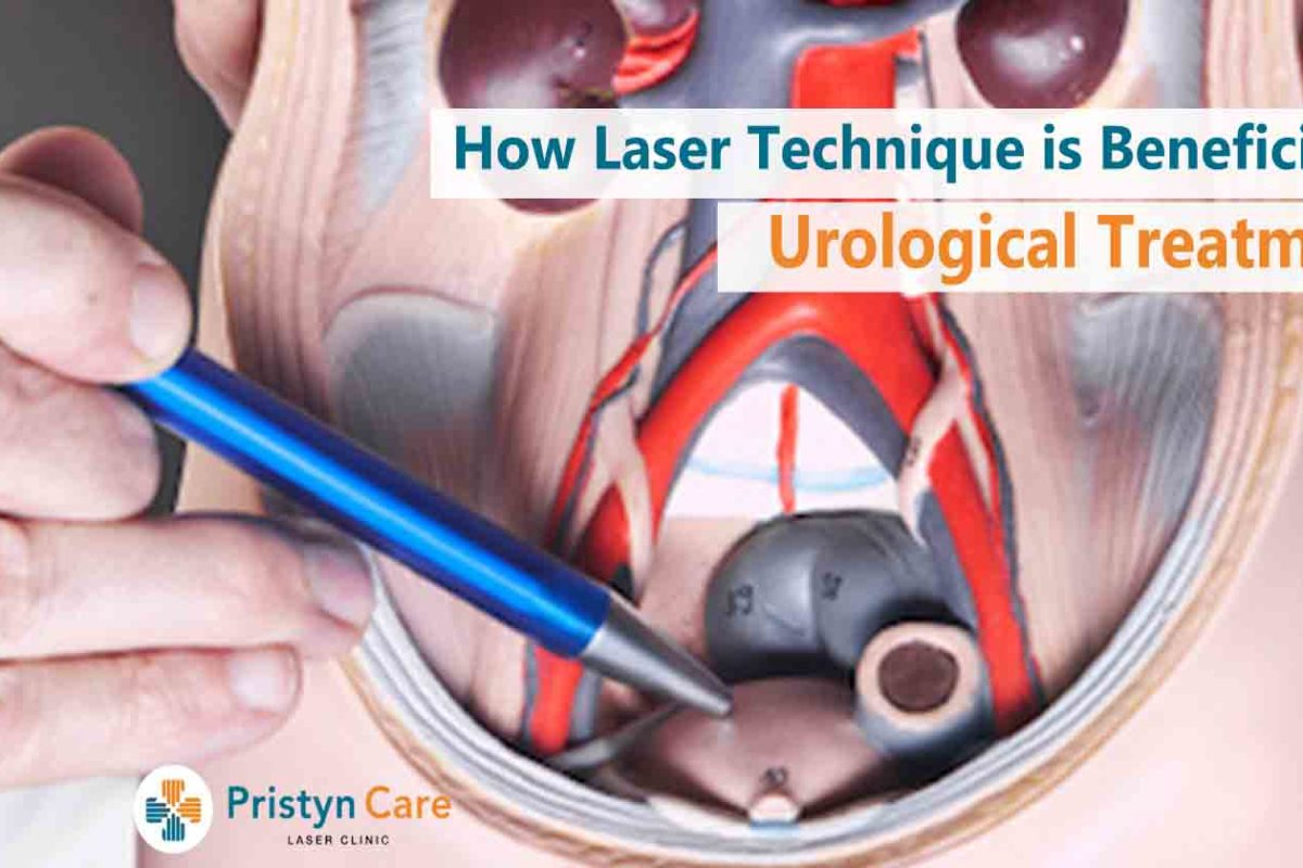 How Laser Technique is Beneficial For Urological Treatment